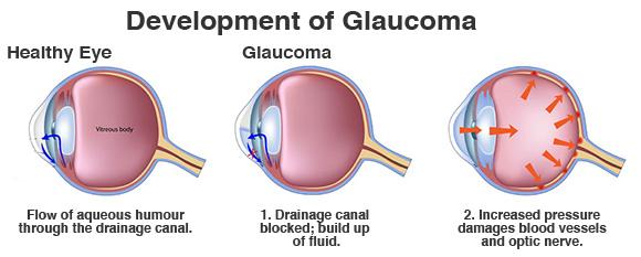 glaucoma
