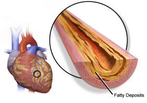 Coronary plaque