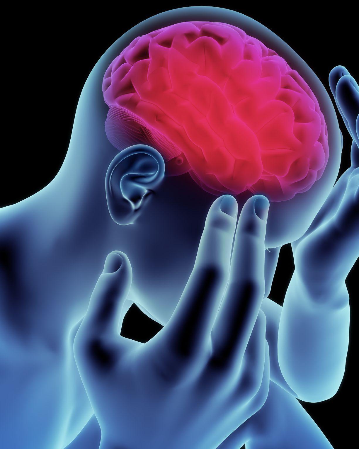 Natural Remedies - Migraines