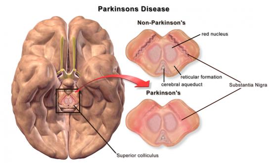 parkinson's substantia nigra
