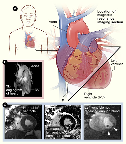 cardiac mri scan