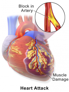 Heart Attack/Necrosis