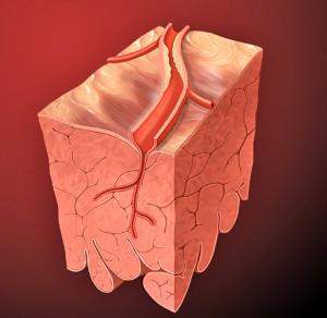 Artery lesion