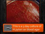 Helicobacter pylori culture