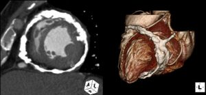 calcification of heart