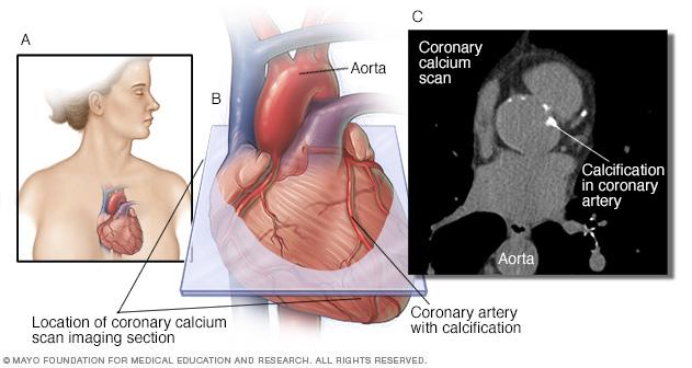 calcium scan
