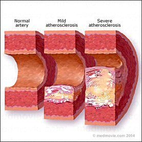 articles-atherosclerosis-1