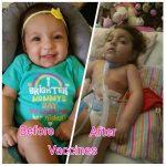 vaccine damage